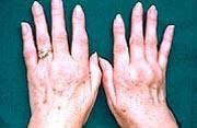 Behandlung entzündlicher Gelenkerkrankungen (=Radiosynoviorthese): www.vincentius-kliniken.de